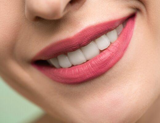 Czy wybielanie zębów boli